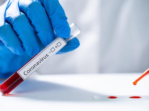 prevencion-tratamiento-coronavirus-baleares
